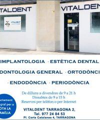 Clínica Dental Vitaldent Tarragona 2